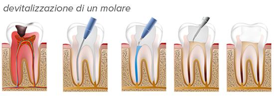 endodonzia devitalizzazione molare
