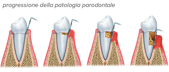 Paradontologia ad Alba - Studio Dentistico Dott. Borelli