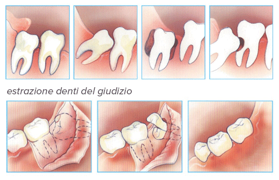 chirurgia denti del giudizio