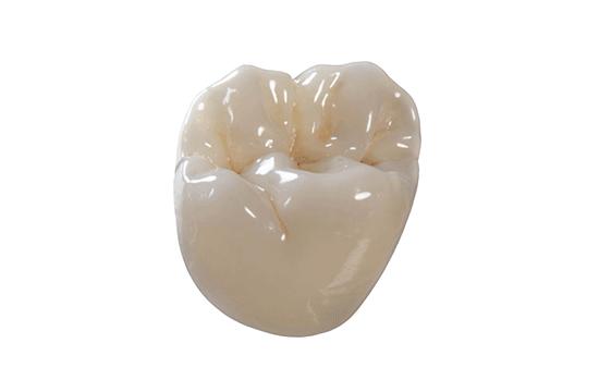 protesi fissa corone