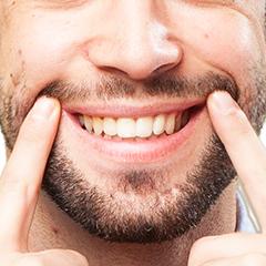 Estetica dentale - Studio Dentistico ad Alba