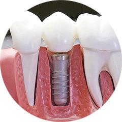 Implantologia - Studio Dentistico ad Alba