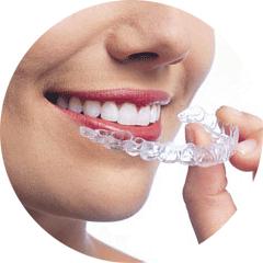 Ortodonzia - Studio Dentistico ad Alba